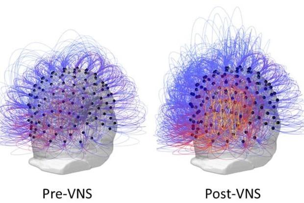 Восстановление сознания после повреждения мозга возможно, – сенсационное исследование