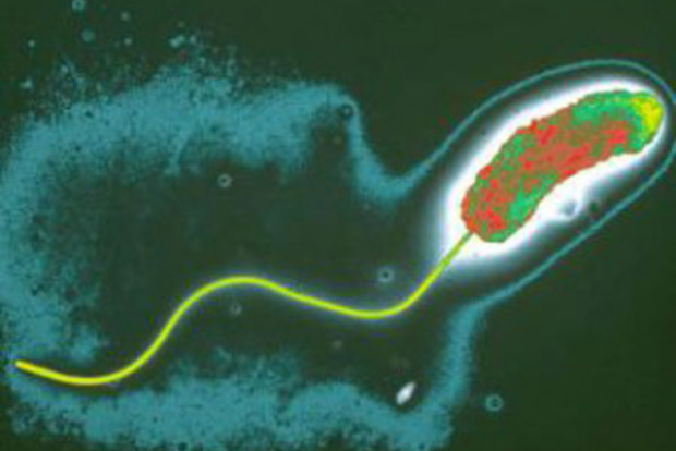 У річках Миколаєва виявили холеру [ Редактировать ]