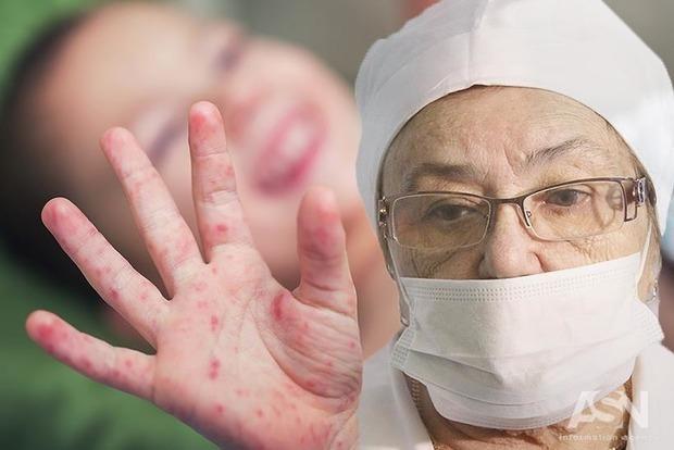 Корь воФранции: заболевшую вылечить неудалось
