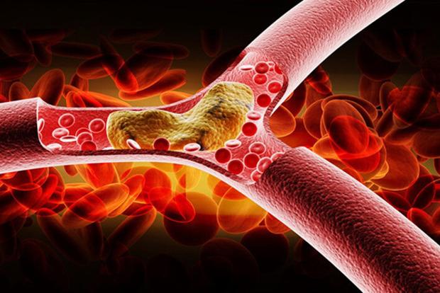 8 признаков высокого холестерина в крови и почему это важно заметить вовремя