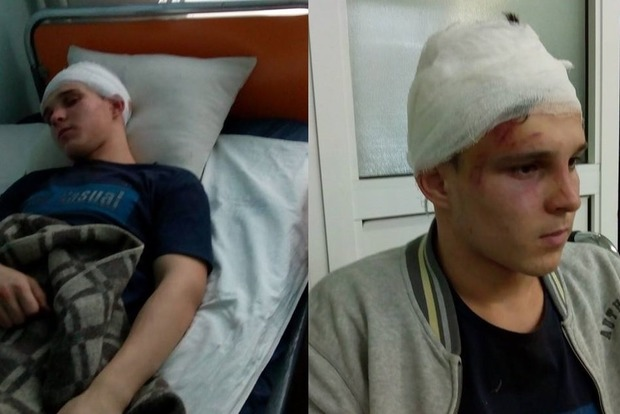 Пятеро молодых людей вновогоднюю ночь зверски избили сына чиновницы