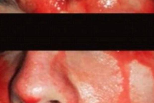 В Италии молодая девушка покрывалась кровавым потом из-за редкой болезни
