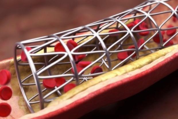 Антиоксиданты способствуют омолаживанию сердца исосудов— Ученые