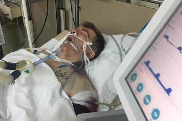Киллеру, пытавшемуся убить Осмаева, объявили о подозрении